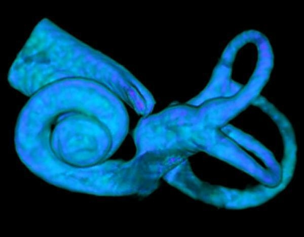 Three-dimensional reconstruction of a human inner ear obtained from high resolution CT scans similar to the images used to measure cochlear radii for the species analyzed in the study. Taken from: http://www.sciencedaily.com/releases/2008/04/080425151819.htm Credit: Courtesy of Darlene Ketten